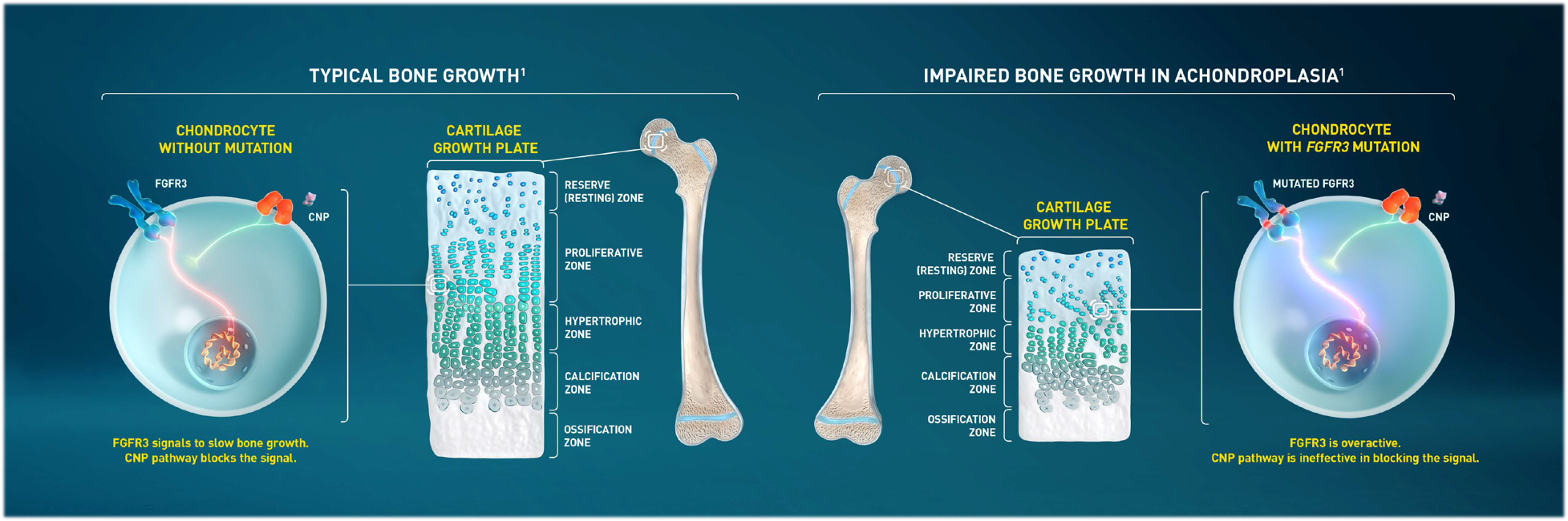 Image: Normal Bone Growth vs. Bone Growth with Achondroplasia